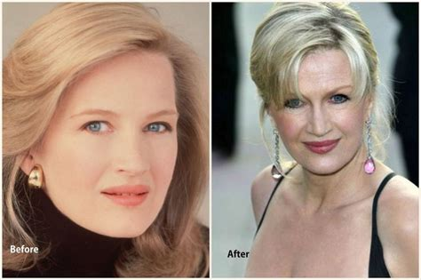 Diane Is Terrified Of Plastic Surgery by 1000 Images About Feel Fashion On