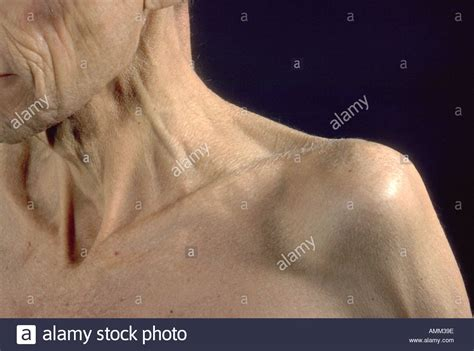ichthyosis images ichthyosis stock photos ichthyosis stock images alamy