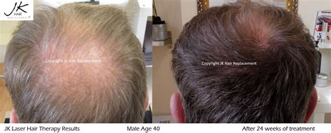 latest news and research on hair loss laser hair therapy for hair regrowth for thinning hair