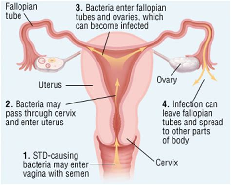 inflammation of the lower section of the uterus can pelvic inflammatory disease affect fertility ask