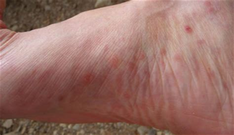 sides of halo couture bumpy bumps on bottom of foot itchy painful lump under skin