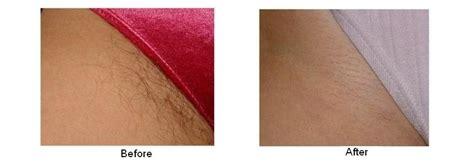 brazilian laser hair removal male on li ny best laser hair removal manhasset long island