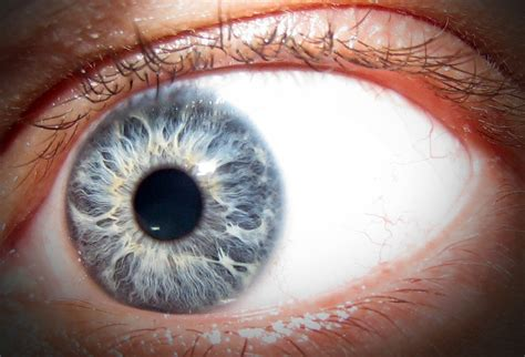 strange eye colors my eye by darknight stock on deviantart