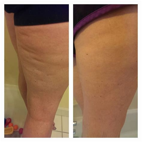 mid 30s cellulite started 23 best nerium firm bye bye cellulite images on