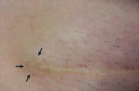 incisional endometriosis after c section cutaneous incisional endometriosis jama dermatology