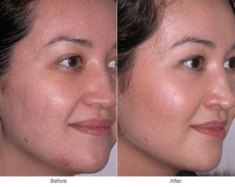acne scars on face treatment acne scar treatment in st louis microdermabrasion skin