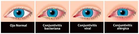imagenes ojos con conjuntivitis causas y tipos de conjuntivitis