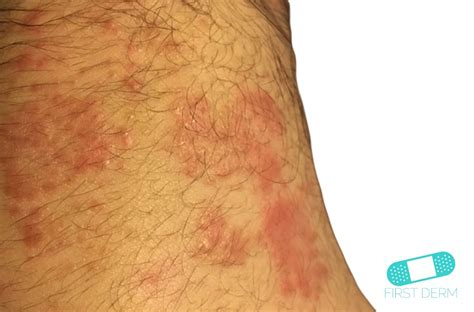 itchy bumps common causes derm
