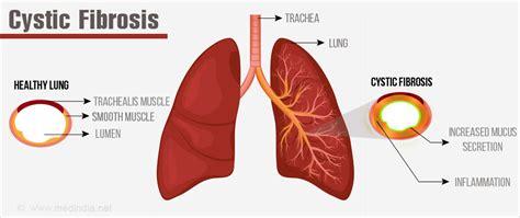 cystic fibrosis pathophysiology diagram councillor reveals cystic fibrosis heartbreak in