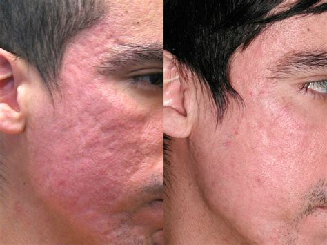 best acne scar mild acne scars scottsdale az at suddenly