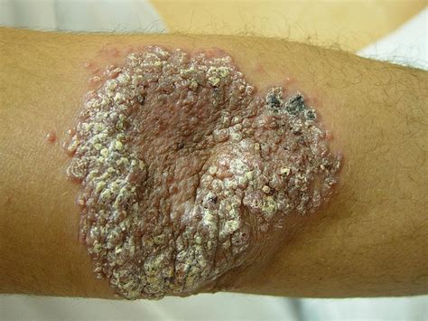 test tbc tuberculosis cutis cutane tuberculose tbc