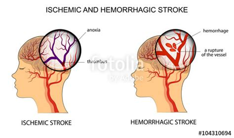the stroke of eleven beaumont and beasley books quot ischemic and hemorrhagic stroke quot stock image and royalty