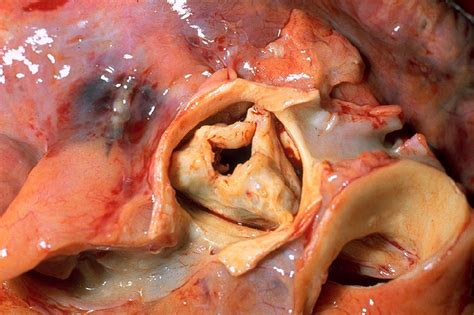 gross pictures file aortic stenosis rheumatic gross pathology 20g0014