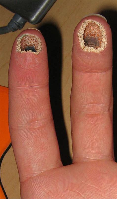 Tattoo Infection Hoax | ekliges foto mit l 246 chern im finger internet gesundheit