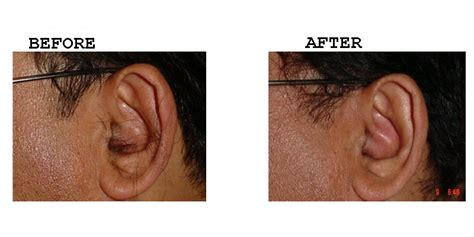 ear hair removal permanent ear hair removal by laser ear hair removal amrit laser cosmetic surgery clinic