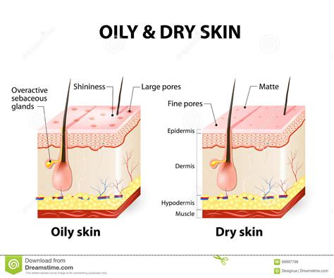 Cystic Pimple Diagram Types Of oily amp dry skin stock vector image 69997798