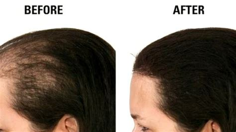 kalonji oil for hair growth kalonji magical hair oil for hair growth stop hairfall