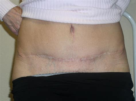 tummy tuck scar before from girlz ink permanent makeup and