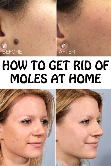 how to get rid of moles at home tricks