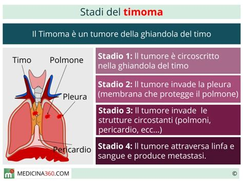tumore al cervello e alimentazione neoplasie timo