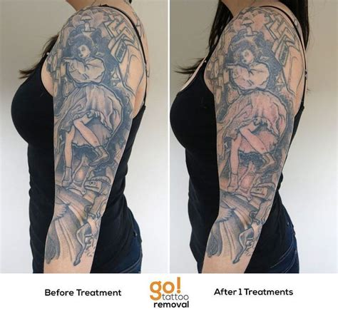 outside in tattoo removal 701 best images about removal in progress on
