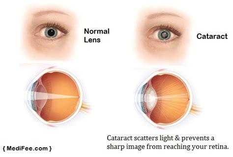 post cataract surgery light cataract treatment in india price procedure risks