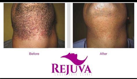 tattoo removal cost west midlands rejuva laser hair clinic private hair removal salon in