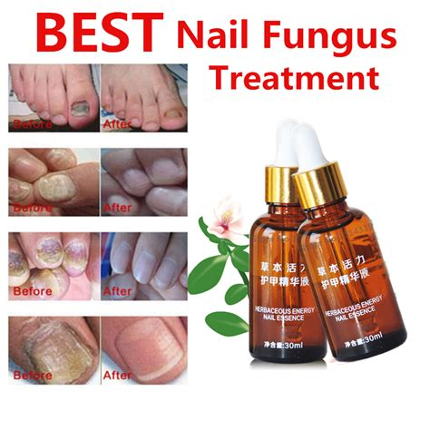 Top Treatment Buy Wholesale Fungus Killer From China Fungus