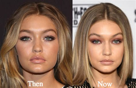 gigi hadid lip injections gigi hadid plastic surgery before and after photos