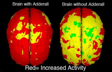 Trazodone While Doing Adderall Detox by The Rise Of Adderall Home
