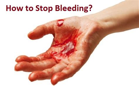 how to stop bleeding on a how to stop bleeding