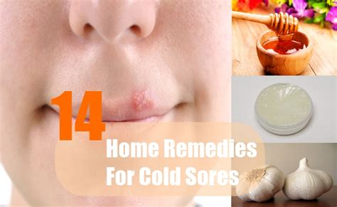 14 home remedies for cold sores treatments