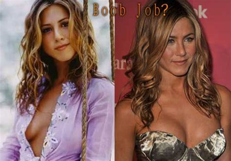 Did Aniston Get Implants by Aniston Plastic Surgery Before After