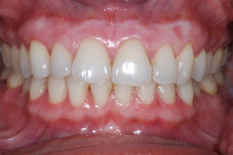 healthy gum color gum bleaching is it for you dental implants