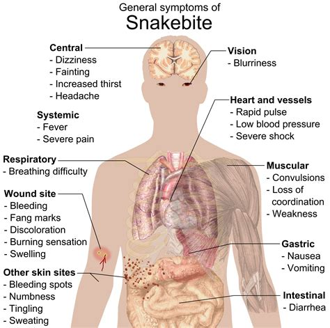 snake bite symptoms file snake bite symptoms png