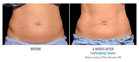 coolsculpting before and after women ottawa skin clinic