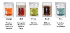 pyridium urine color dc1 ex2 urinalysis flashcards quizlet