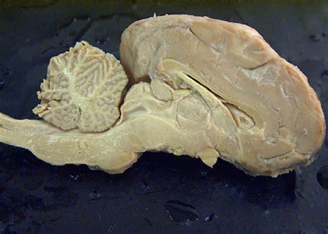 sagittal section of sheep brain sagittal section of sheep brain