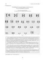 Diagram A Cell With Four Chromosomes Going Through Meiosis
