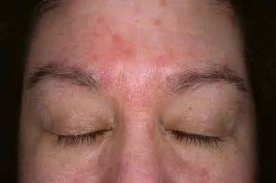 skin the ears answers on healthtap
