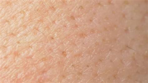 pores on human skin macro up of caucasian skin with holls stock photo royalty free image human white skin closeup macro stock footage 8977615