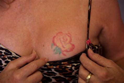 green tattoo removal laser removal before and after the untattoo