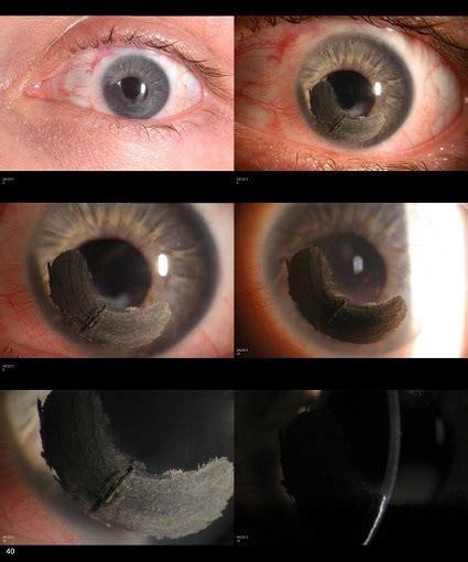 corneal tattooing cornea