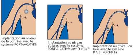 chambre implantable complications cliniiciens smiths