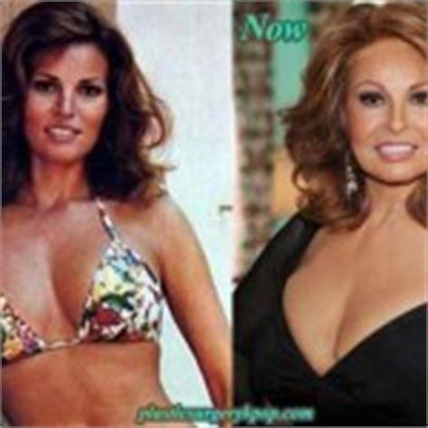 dominique sachse plastic surgery dominique sachse plastic surgery bing images