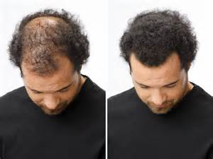 before and after thinning mens haircut how to bald gracefully miss perfect woman