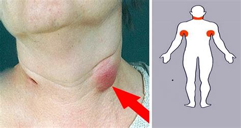 5 swollen lymph nodes home remedies to treat your