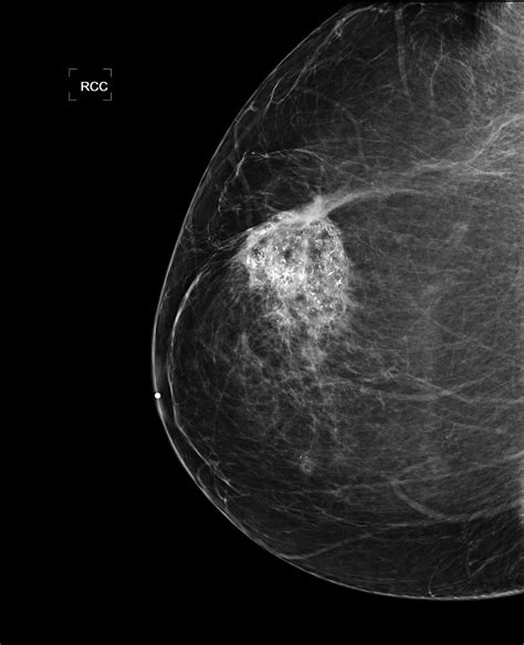 mammogram images diagnostic mammogram diagnostic