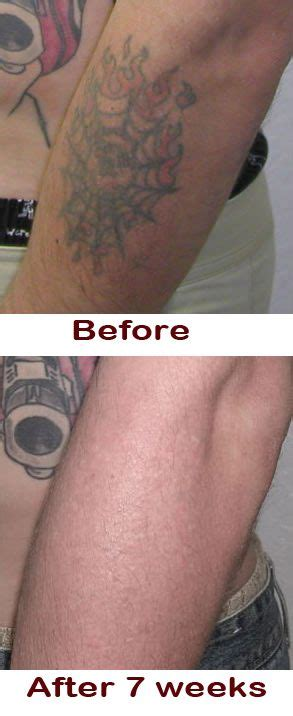 where can i buy tattoo removal cream best 25 removal ideas on
