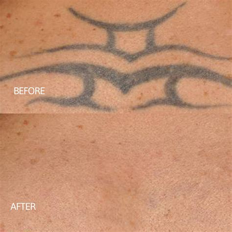 laser tattoo removal omaha prestige medical laser solutions
